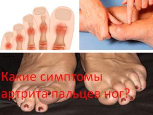 Какие симптомы артрита пальцев ног?
