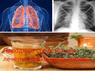 Народные средства для лечения саркоидоза легких