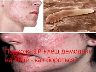 Подкожный клещ демодекс на лице - как бороться?