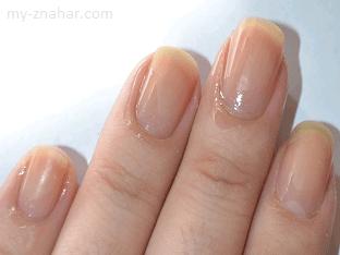 Почему слоятся ногти и как с этим бороться?