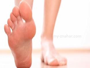 Как избавится от косточек на ногах?