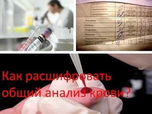 Как расшифровать общий анализ крови?
