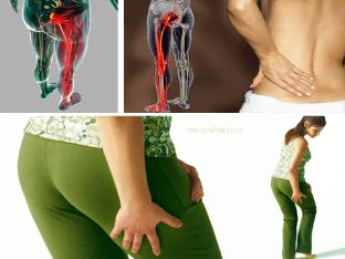 Воспаление седалищного нерва (ишиас), что делать, чем лечить?