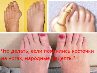 Что делать, если появились косточки на ногах, народные рецепты?