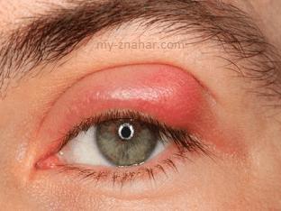 Как и чем лечить ячмень на глазу?