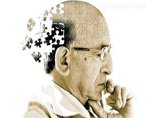 Как лечить болезнь Альцгеймера?