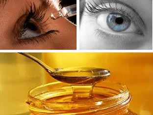 Как можно применять мед для лечения болезни глаз?