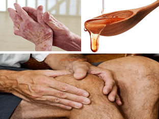 Как можно применять мед для лечения болезни суставов?