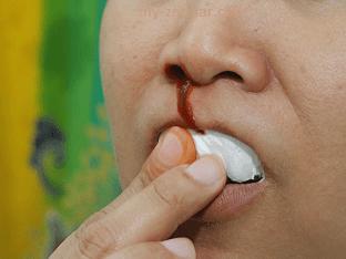 Как правильно остановить носовое кровотечение?