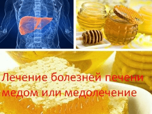 Лечение болезней печени медом или медолечение