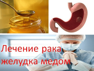 Лечение рака желудка медом