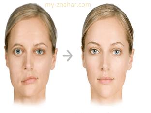 Невралгия лицевого нерва, что делать, чем лечить?