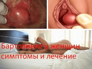 Бартолинит у женщин симптомы и лечение