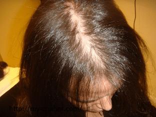 Что делать при  алопеции у женщин, как лечить?