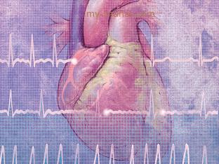 Что делать при мерцательной аритмии, как лечить?