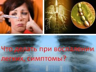 Что делать при воспалении легких, симптомы?