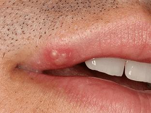 Что поможет избавиться от герпеса на губах