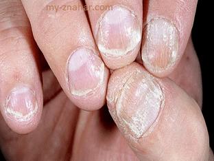 Если псориаз на ногтях, что делать при псориазе ногтей?