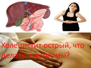 Холецистит острый, что делать, симптомы?