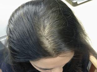Как лечить андрогенную алопецию у женщин?