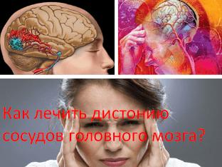 Как лечить дистонию сосудов головного мозга