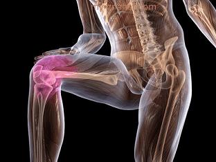 Как лечить остеохондроз коленных суставов?