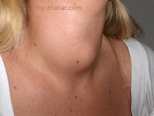 Как лечить зоб щитовидной железы?
