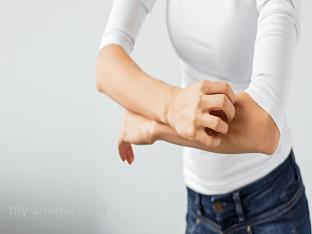 Как облегчить симптомы аллергии природными средствами?