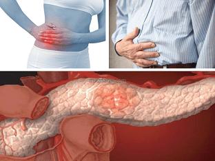 Какие могут быть симптомы у хронического панкреатита?
