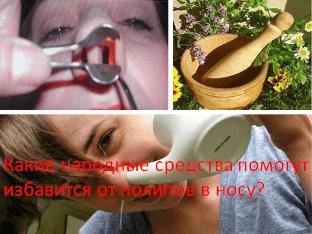 Какие народные средства помогут избавится от полипов в носу?