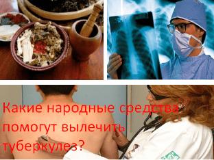 Какие народные средства помогут вылечить туберкулез?