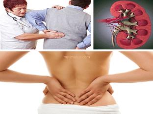 Какие симптомы могут быть при кисте почки?