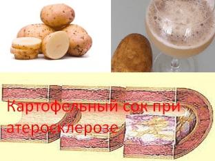 Картофельный сок при атеросклерозе