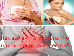 Компрессы при мастопатии: как делать и какой эффект?