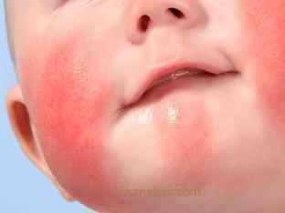 Лечение диатеза у детей без лекарств