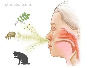 Можно ли вылечить аллергию без лекарств?