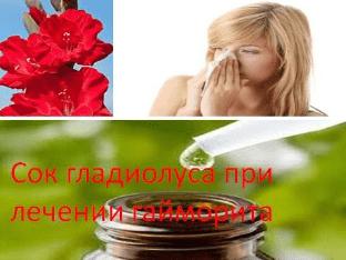 Народные средства для лечения гайморита