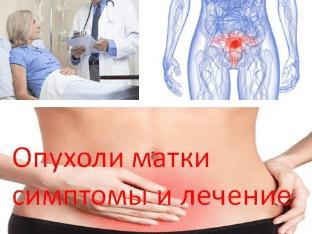 Опухоли матки симптомы и лечение