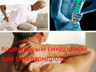Остеохондроз с корешковым синдромом: симптомы
