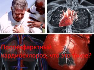 Постинфарктный кардиосклероз, что это такое?