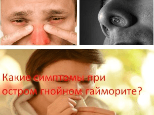 Симптомы острого гнойного гайморита