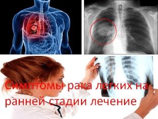 Симптомы рака легких на ранней стадии лечение