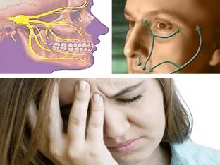 Воспаление тройничного нерва, что делать, чем лечить?