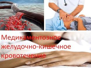 Желудочно-кишечное кровотечение: причины и лечение