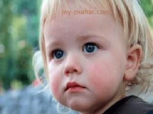 Что делать, если у годовалого ребенка диатез
