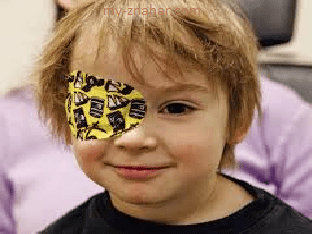Что такое амблиопия (ленивый глаз), как лечить