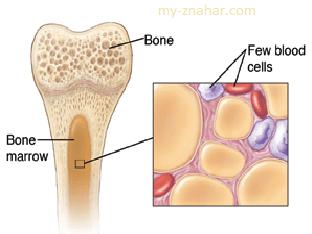 Что такое апластическая анемия, как лечить