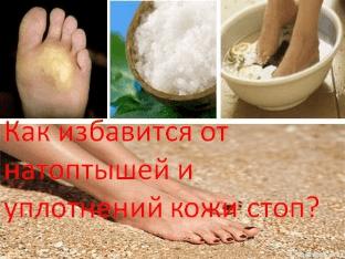 Как избавится от натоптышей и уплотнений кожи стоп