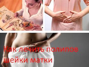 Как лечить полипы шейки матки народными средствами