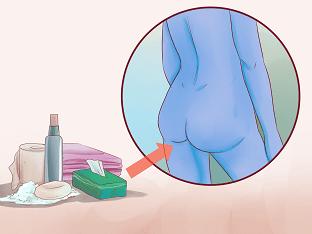 Как лечить внешний геморрой